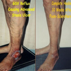 Treatment Of Stasis Venous Ulcers Through Foam Sclerotheraphy