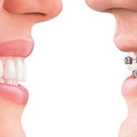 Cosmetic dentist services in Northridge, CA