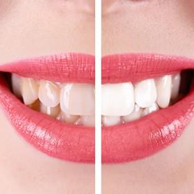 Treatment for Teeth Whitening in Philadelphia PA