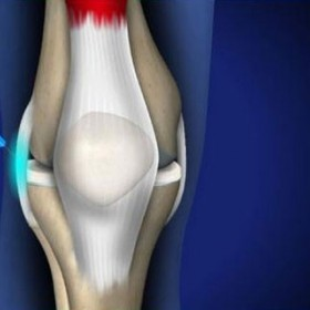Prolotherapy Treatment for Chronic Knee Pain