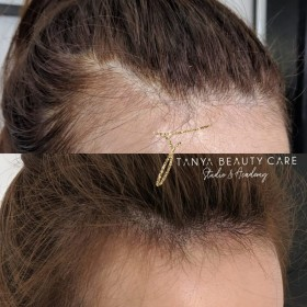 Hairline Microblading - Effective Solution For Both Men And Women