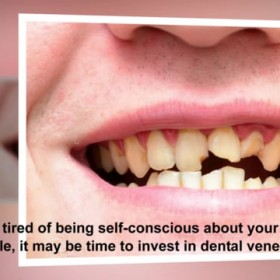 Improve Your Smile with Cosmetic Dental Veneers in Chesterfield, MO