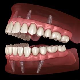 Dental Implants Charleston SC
