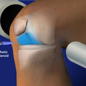 Fluoroscopic Guided Steroid Injection For Knee Pain