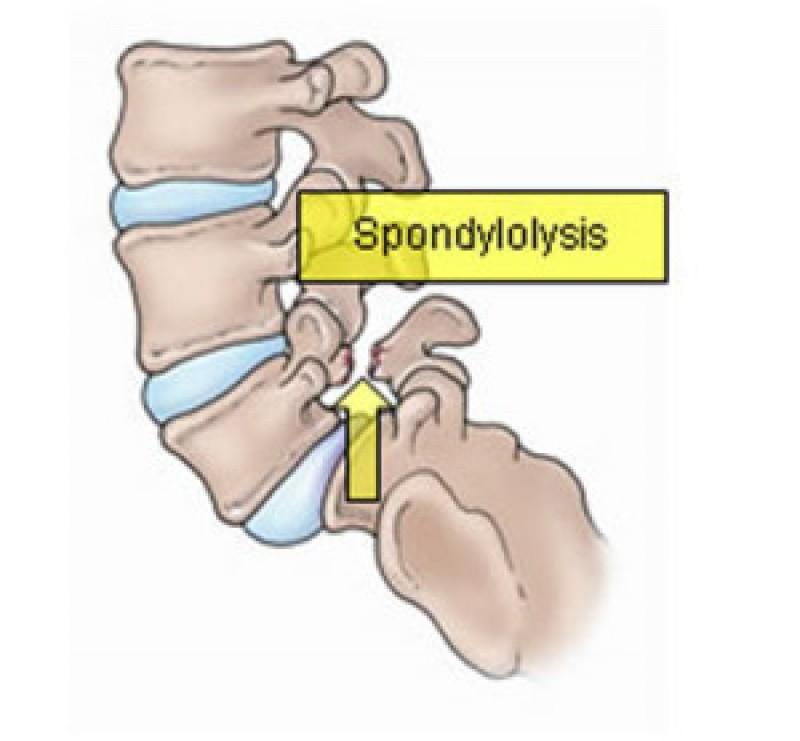 Spondylosis Treatment New Jersey