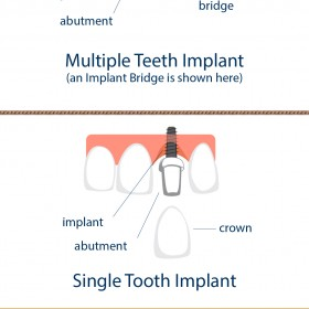 Single and Multiple Teeth Implants - EON Clinics Dental Implants