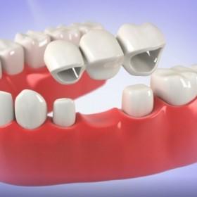 Cosmetic Dentistry Services In El Paso TX