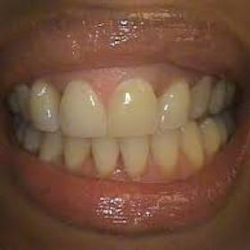 Northridge Advance Orthodontist For Straight Teeth
