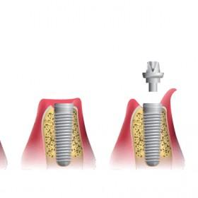 Dental Implants In Palm Coast