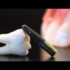 Latest Technology in Dental Implants Redding CA