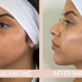 Non-Surgical Facial Profile Balancing