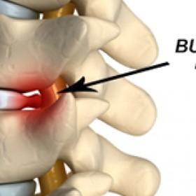 Bulging Disc Treatment New Jersey