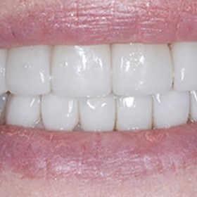 Looking For Veneers Treatment Nearby - Cary Dental Associates